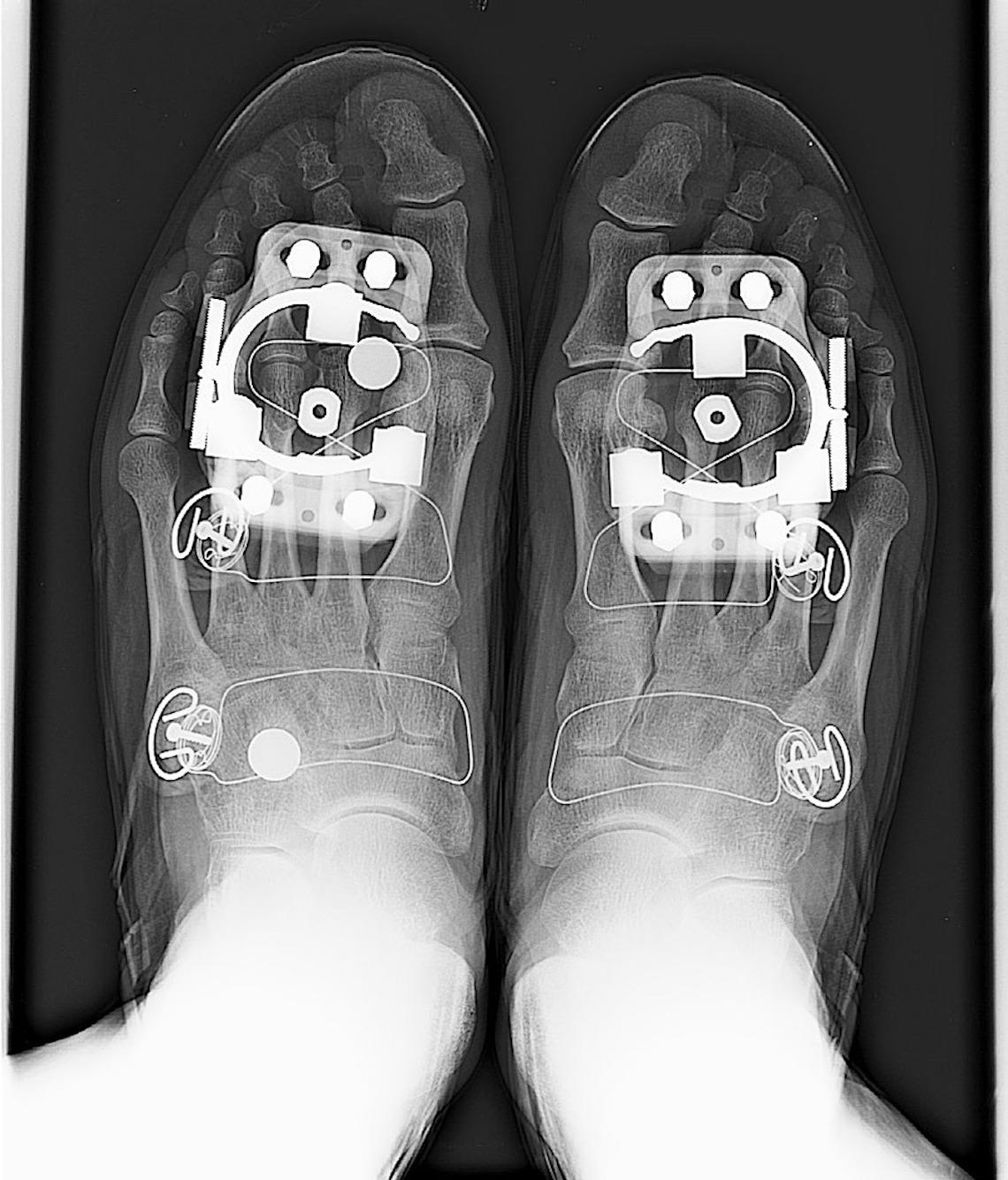 Paul Perret Cycling_x-ray_art_prints_4